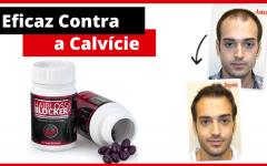 Hairlossblocker Eficaz Contra Queda de Cabelo e Calvície.